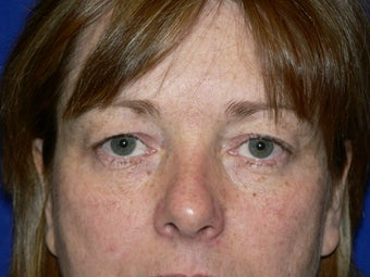 Blepharoplasty before 385221