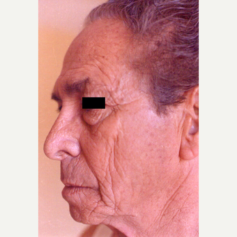65-74 year old man treated with Chemical Peel before 3543699