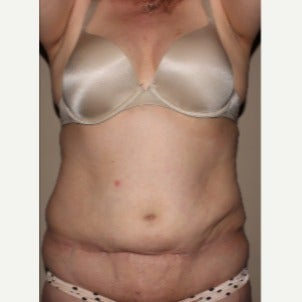 45-54 year old woman treated with Tummy Tuck Revision before 2264625