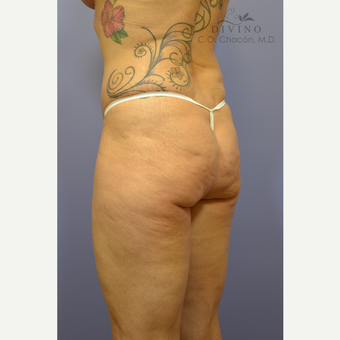 45-54 year old woman treated with Liposuction before 3391729