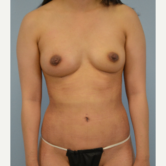 18-24 year old woman treated with Breast Fat Transfer after 3432063