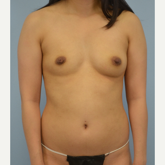 18-24 year old woman treated with Breast Fat Transfer before 3432063