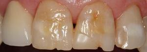 Fillings to Restore Chipped Teeth