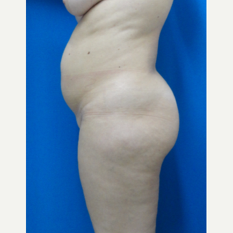 35-44 year old woman treated with Tummy Tuck, Liposuction and fat transfer to buttocks before 3526925