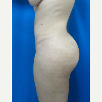 35-44 year old woman treated with Tummy Tuck, Liposuction and fat transfer to buttocks after 3526925