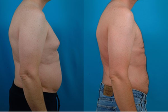 40-year-old man treated with Liposuction. after 574562