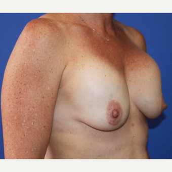 35-44 year old woman treated with Breast Implant Revision before 3658641