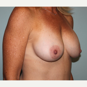 35-44 year old woman treated with Breast Implant Revision after 3658641
