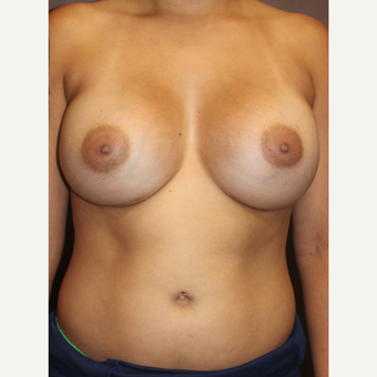 25-34 year old woman treated with Breast Augmentation after 3423942
