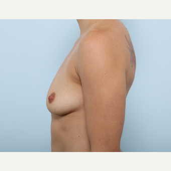 Breast Augmentation before 3345343