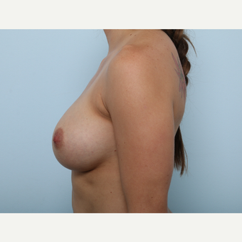 Breast Augmentation after 3345343