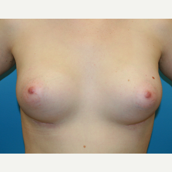 26 year old woman treated with Breast Augmentation after 3486990