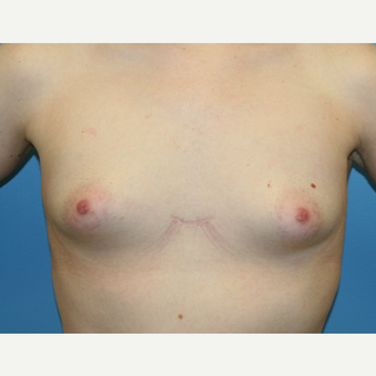 26 year old woman treated with Breast Augmentation before 3486990