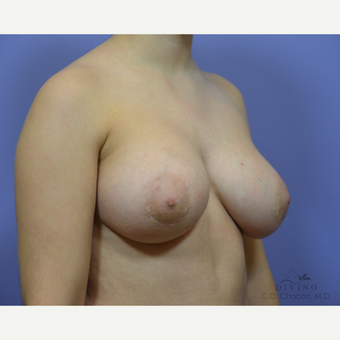18-24 year old woman treated with Breast Augmentation after 3386418