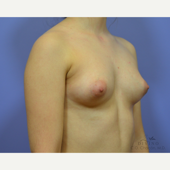 18-24 year old woman treated with Breast Augmentation before 3386418