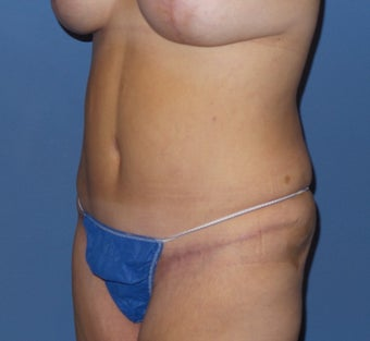 45-54 year old woman treated with Tummy Tuck after 3212989