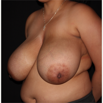 26 year old woman treated with Breast Reduction before 3175882