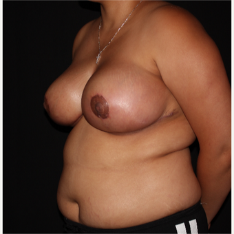 26 year old woman treated with Breast Reduction after 3175882
