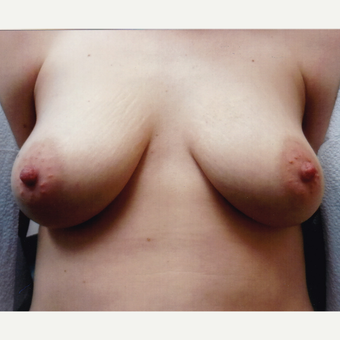 25-34 year old woman treated with Breast Augmentation before 3108314