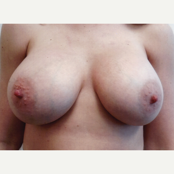 25-34 year old woman treated with Breast Augmentation after 3108314