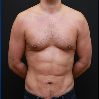 35-44 year old man Six pack Treatment after 3179417