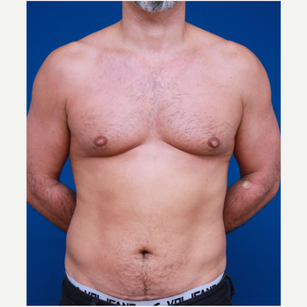 35-44 year old man Six pack Treatment before 3179417