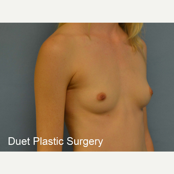 18-24 year old woman treated with Breast Augmentation before 3342241