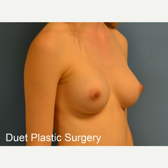 18-24 year old woman treated with Breast Augmentation after 3342241