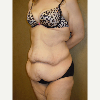 25-34 year old woman treated with Tummy Tuck before 2806550