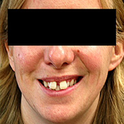 Invisalign before 1786042
