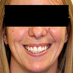 Invisalign after 1786042