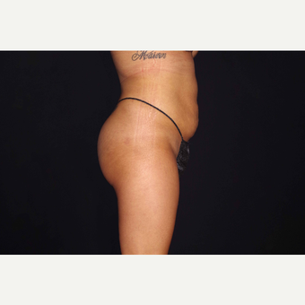 25-34 year old woman treated with Butt Lift after 3644610