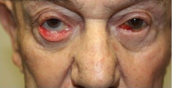 65-74 year old man treated with Eyelid Retraction Repair before 3227785