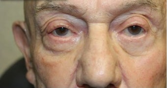 65-74 year old man treated with Eyelid Retraction Repair after 3227785