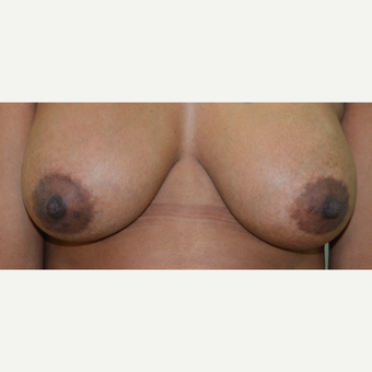 25-34 year old woman treated with Breast Implants after 3073414