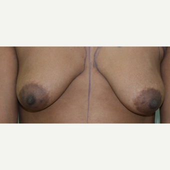 25-34 year old woman treated with Breast Implants before 3073414