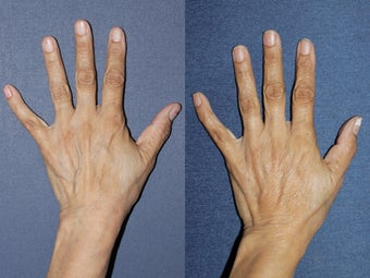 Sclerotherapy For Hand Veins before 1033899
