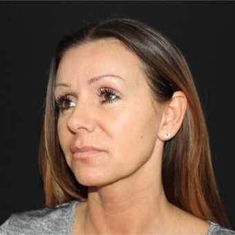 45-54 year old woman treated with Lower Face Lift before 3239197