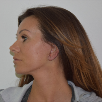 45-54 year old woman treated with Lower Face Lift after 3239197