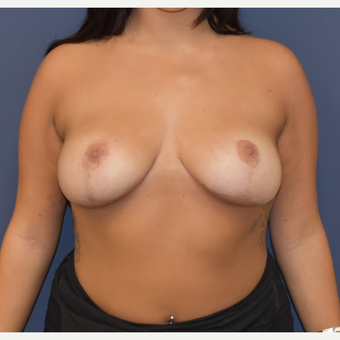 25-34 year old woman treated with Breast Reduction after 3493294
