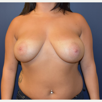 25-34 year old woman treated with Breast Reduction before 3493294