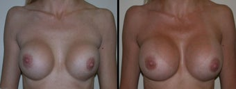 Breast Augmentation before 1231586