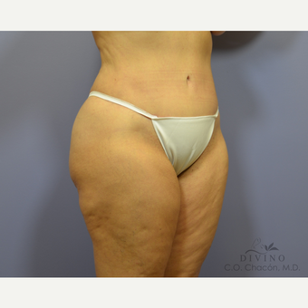 55-64 year old woman treated with Tummy Tuck after 3422082