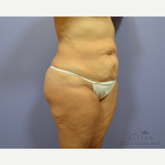 55-64 year old woman treated with Tummy Tuck before 3422082