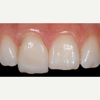 18-24 year old woman treated with Porcelain Veneers after 3428172