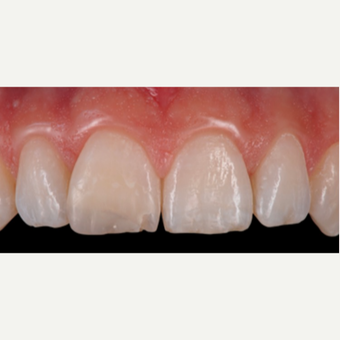 18-24 year old woman treated with Porcelain Veneers before 3428172
