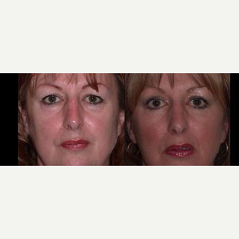 55-64 year old woman treated with Facelift before 3602507