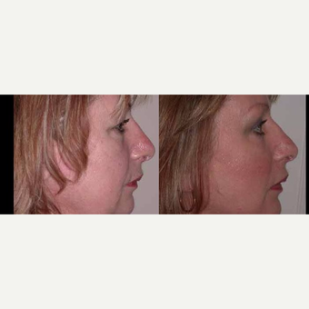 55-64 year old woman treated with Facelift after 3602507