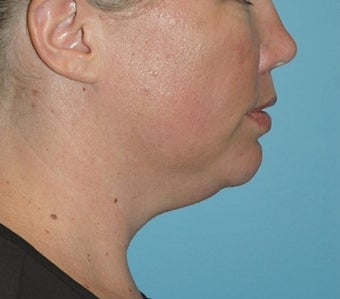 35-44 year old woman treated with Kybella before 2565619