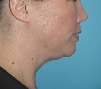 35-44 year old woman treated with Kybella after 2565619